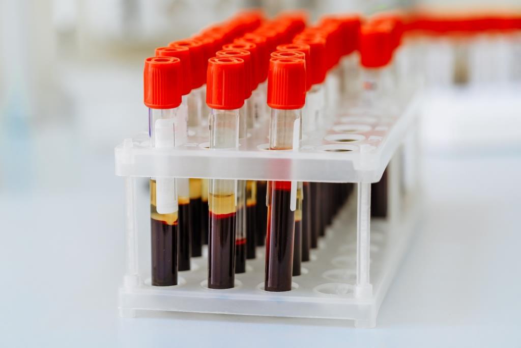 Tube Test untuk Ambil Sampel Darah