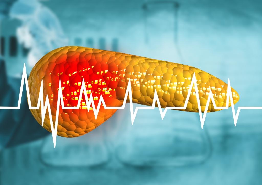Skrining Kanker Pankreas pada Orang dengan Risiko Genetik ...